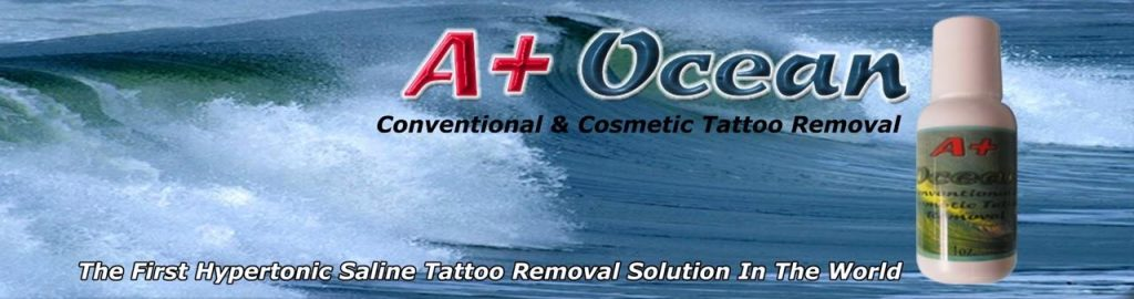 a plus ocean tattoo removal